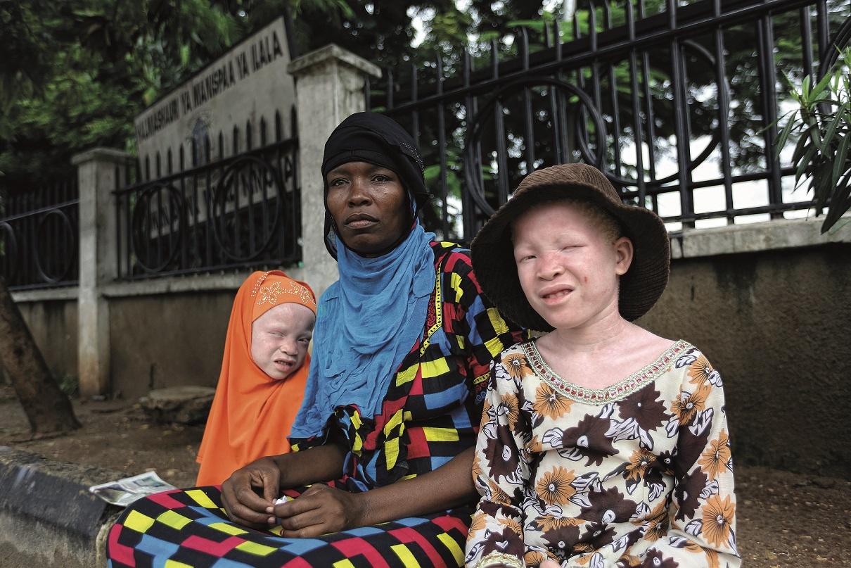 Afrikalı Albinoların Yaşamı İKÜSAG'DA